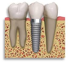 Dental_implants_Brisbane_Emerald